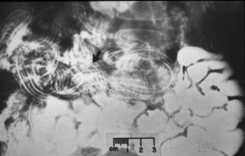 treatment of helminth viermi paraziti lati